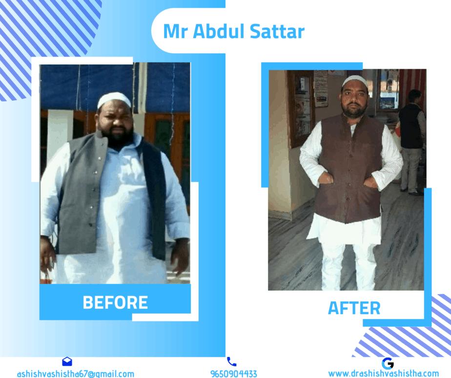 best weight loss surgeon in delhi